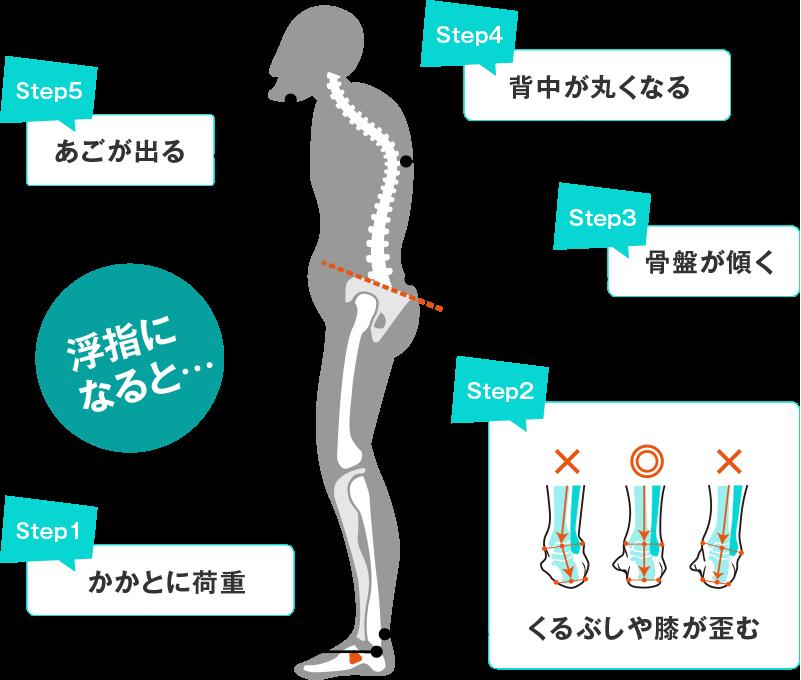 浮き指になると、かかとに荷重がかかり、くるぶしや膝が歪んで骨盤が傾き、背中が丸くなってあごが出ます